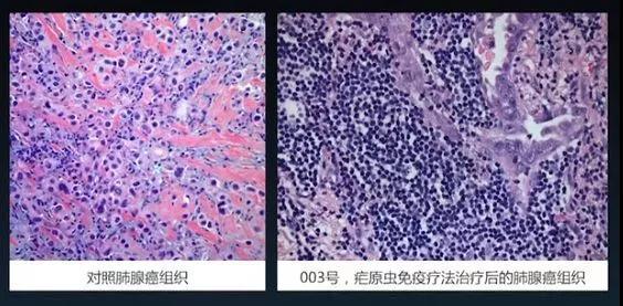 利用疟疾的疟原虫治疗癌症?靠谱吗?